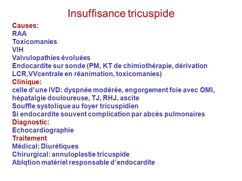 Insuffisance tricuspide Causes: RAA Toxicomanies VIH Valvulopathies évoluées Endocardite sur sonde (PM, KT de chimiothérapie, dérivation LCR,VVcentral