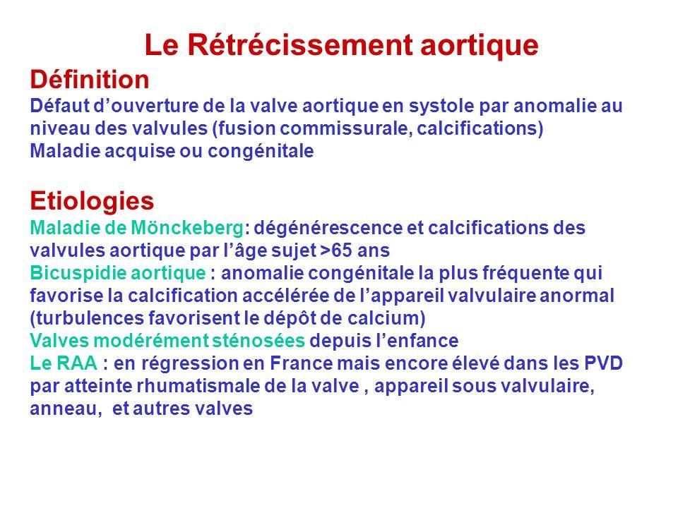 Le Rétrécissement aortique Définition Défaut douverture de la valve aortique en systole par anomalie au niveau des valvules (fusion commissurale, calc