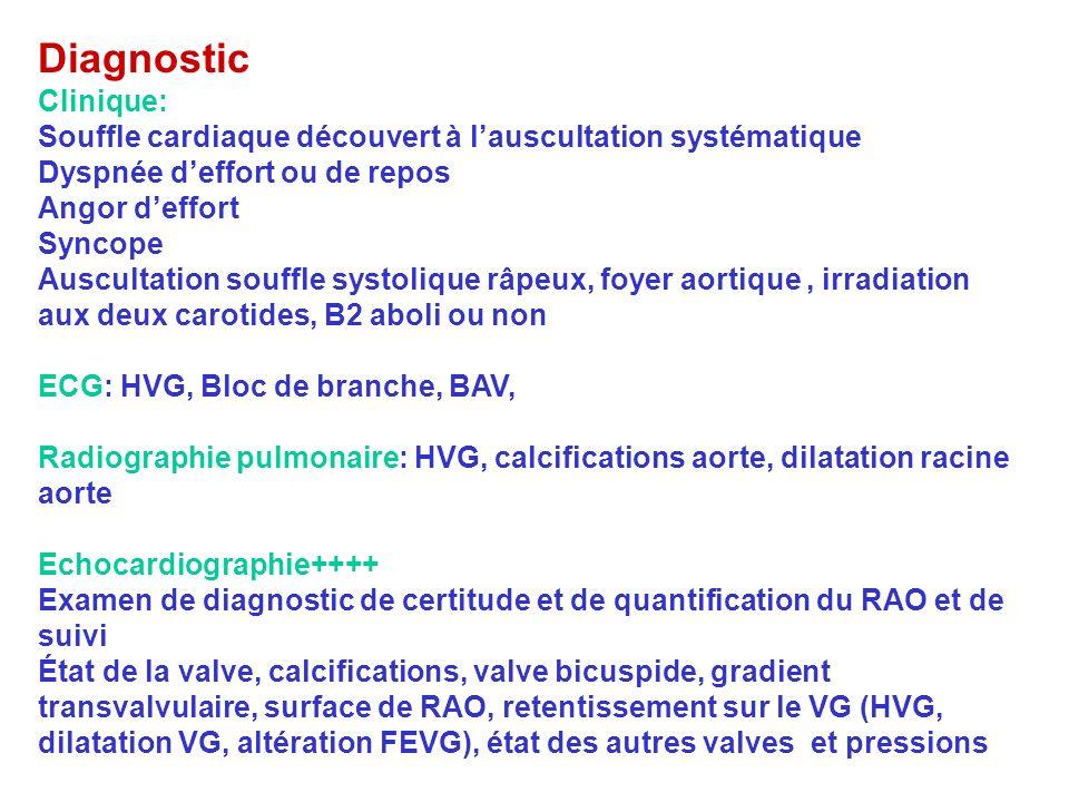 Diagnostic Clinique: Souffle cardiaque découvert à lauscultation systématique Dyspnée deffort ou de repos Angor deffort Syncope Auscultation souffle s