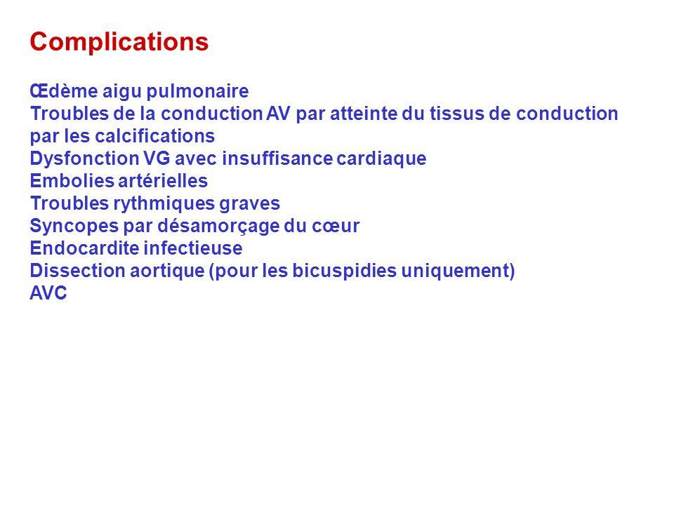 Complications Œdème aigu pulmonaire Troubles de la conduction AV par atteinte du tissus de conduction par les calcifications Dysfonction VG avec insuf