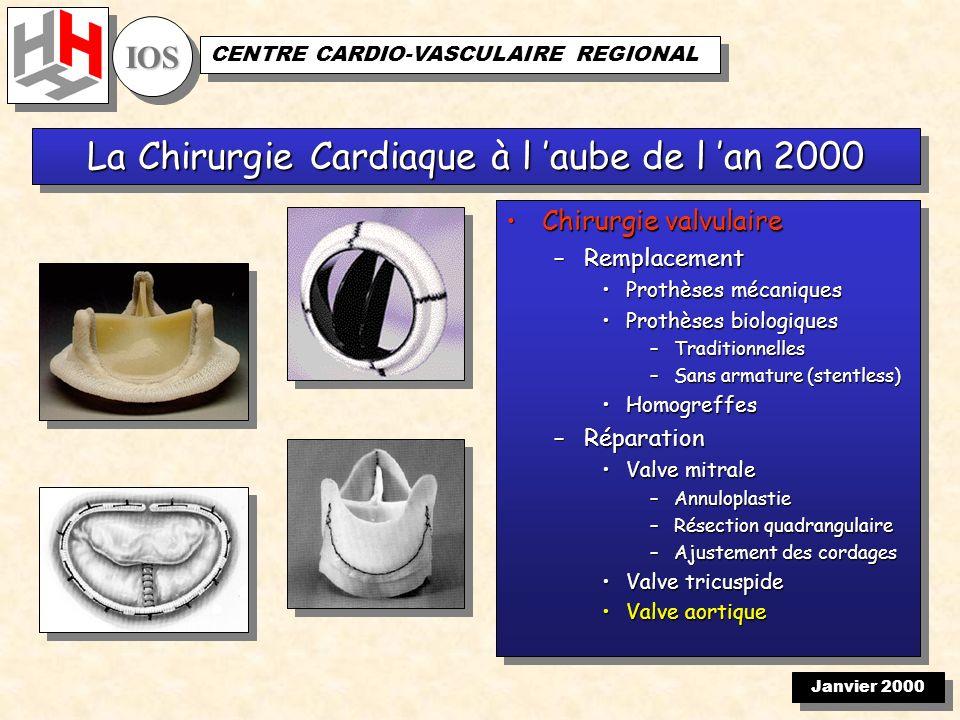 Janvier 2000 IOSIOS CENTRE CARDIO-VASCULAIRE REGIONAL
