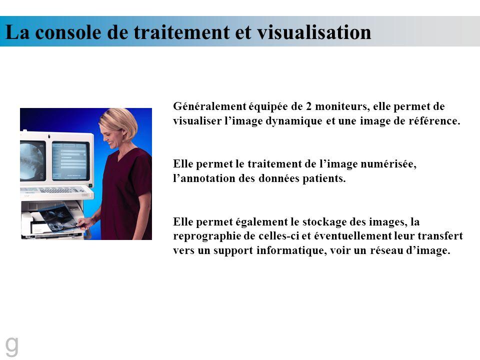 La console de traitement et visualisation Généralement équipée de 2 moniteurs, elle permet de visualiser limage dynamique et une image de référence. E