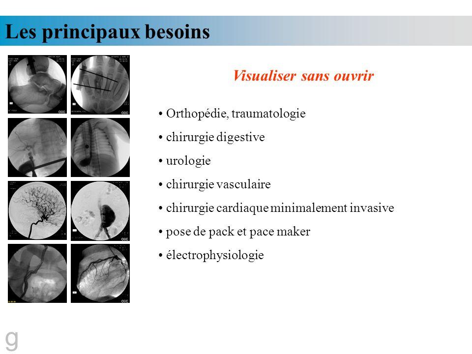 Les principaux besoins Visualiser sans ouvrir Orthopédie, traumatologie chirurgie digestive urologie chirurgie vasculaire chirurgie cardiaque minimale