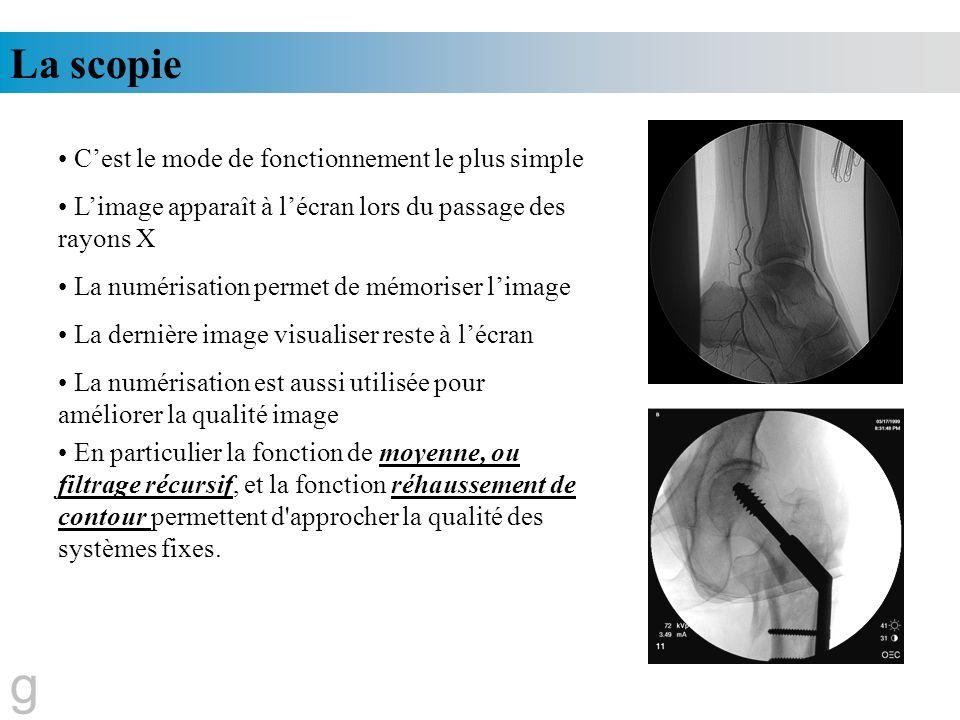 La scopie g Cest le mode de fonctionnement le plus simple Limage apparaît à lécran lors du passage des rayons X La numérisation permet de mémoriser li