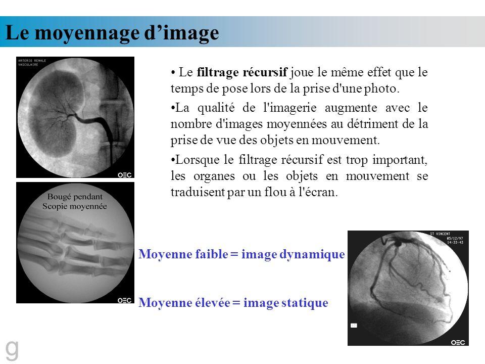 Le moyennage dimage g Le filtrage récursif joue le même effet que le temps de pose lors de la prise d'une photo. La qualité de l'imagerie augmente ave