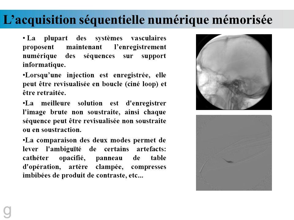 Lacquisition séquentielle numérique mémorisée g La plupart des systèmes vasculaires proposent maintenant lenregistrement numérique des séquences sur s
