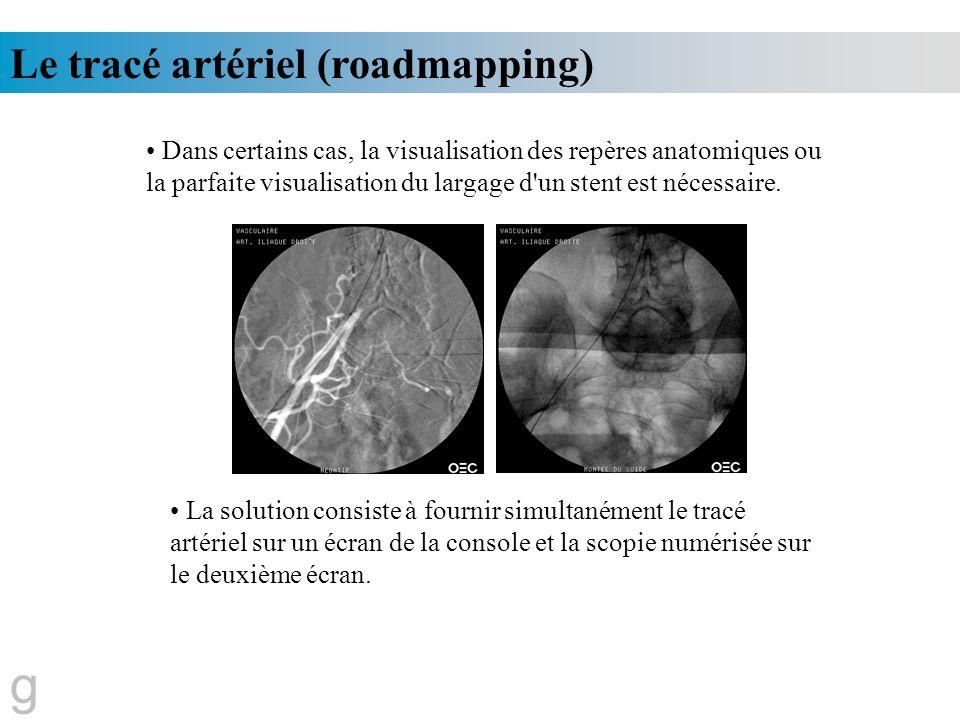 Le tracé artériel (roadmapping) g Dans certains cas, la visualisation des repères anatomiques ou la parfaite visualisation du largage d'un stent est n