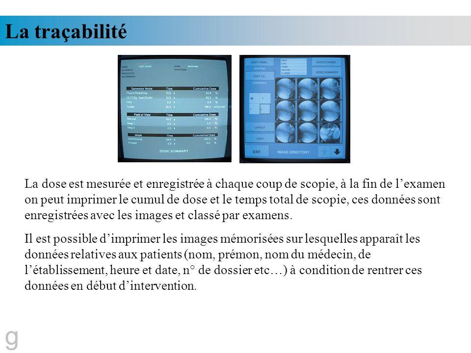 La traçabilité g La dose est mesurée et enregistrée à chaque coup de scopie, à la fin de lexamen on peut imprimer le cumul de dose et le temps total d