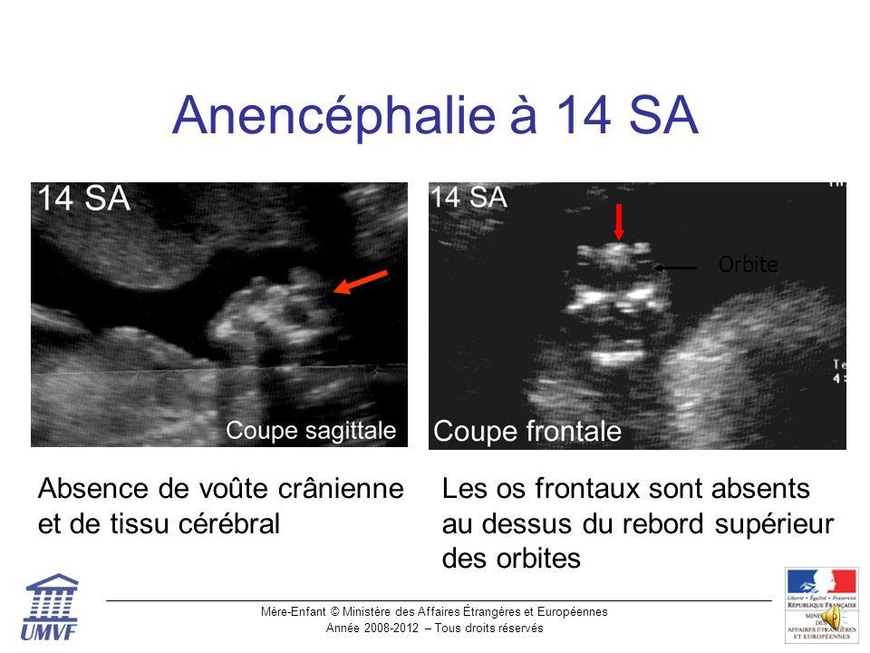 Mère-Enfant © Ministère des Affaires Étrangères et Européennes Année 2008-2012 – Tous droits réservés Anencéphalie 12-13 SA Anencéphalie Pole céphalique normal