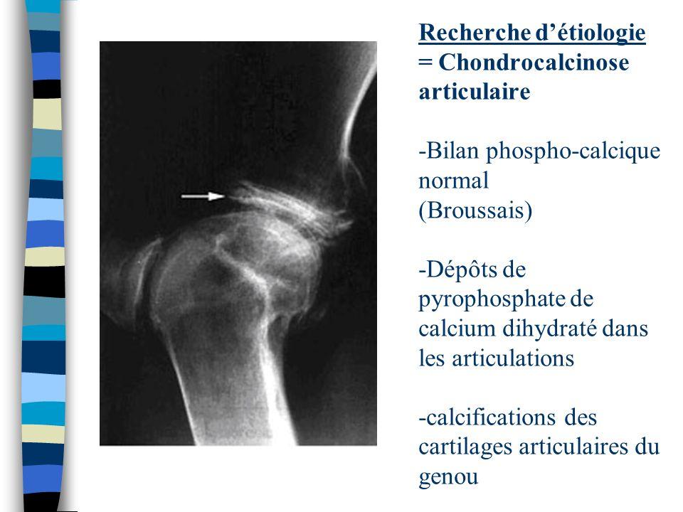 Recherche détiologie = Chondrocalcinose articulaire -Bilan phospho-calcique normal (Broussais) -Dépôts de pyrophosphate de calcium dihydraté dans les