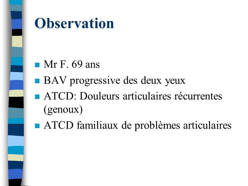 Observation n Mr F. 69 ans n BAV progressive des deux yeux n ATCD: Douleurs articulaires récurrentes (genoux) n ATCD familiaux de problèmes articulair