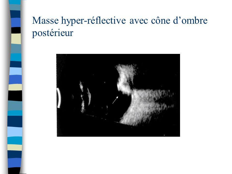Masse hyper-réflective avec cône dombre postérieur