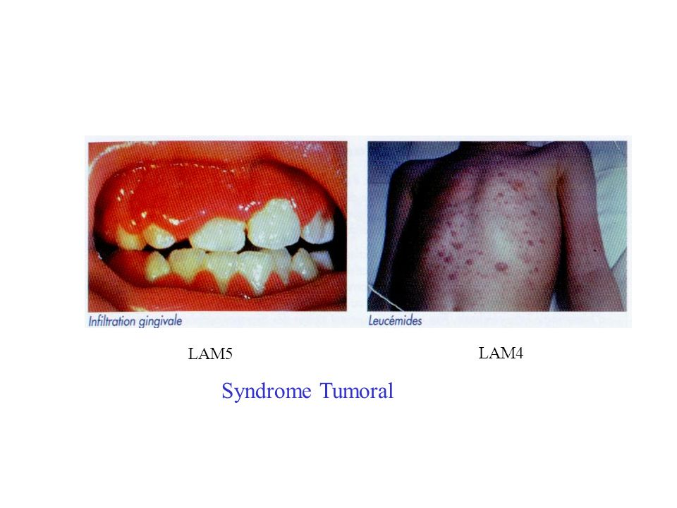 Syndrome Tumoral LAM5 LAM4