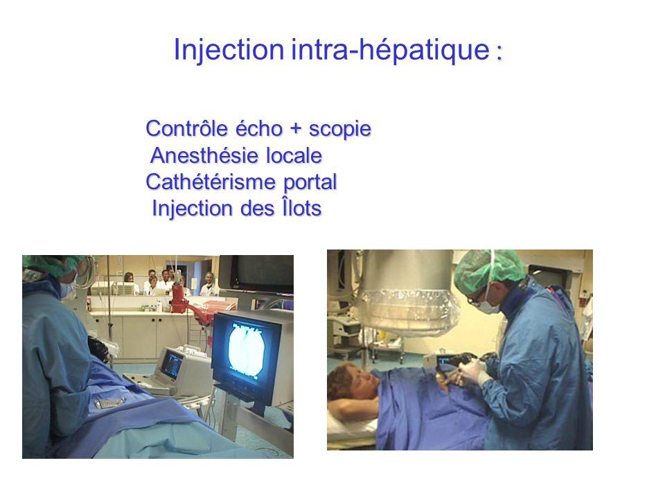 : Injection intra-hépatique : Contrôle écho + scopie Anesthésie locale Cathétérisme portal Injection des Îlots