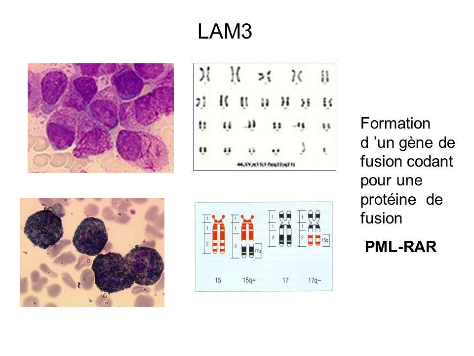 LAM3 Formation d un gène de fusion codant pour une protéine de fusion PML-RAR