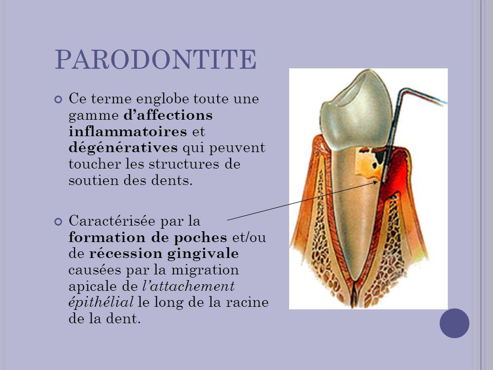 PARODONTITE Ce terme englobe toute une gamme daffections inflammatoires et dégénératives qui peuvent toucher les structures de soutien des dents. Cara