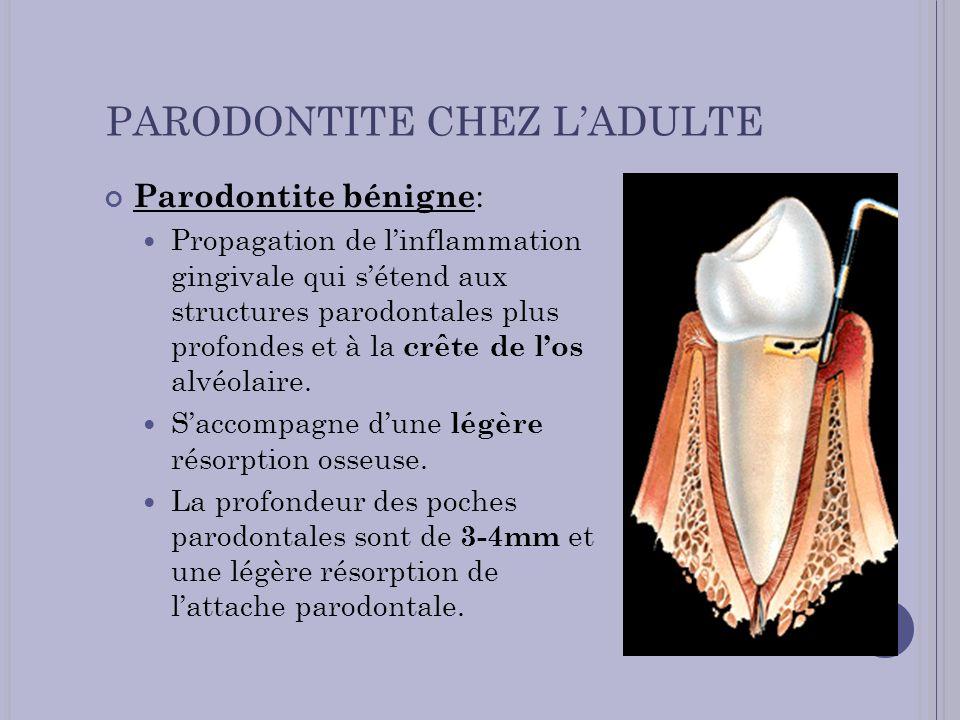 PARODONTITE CHEZ LADULTE Parodontite bénigne : Propagation de linflammation gingivale qui sétend aux structures parodontales plus profondes et à la cr