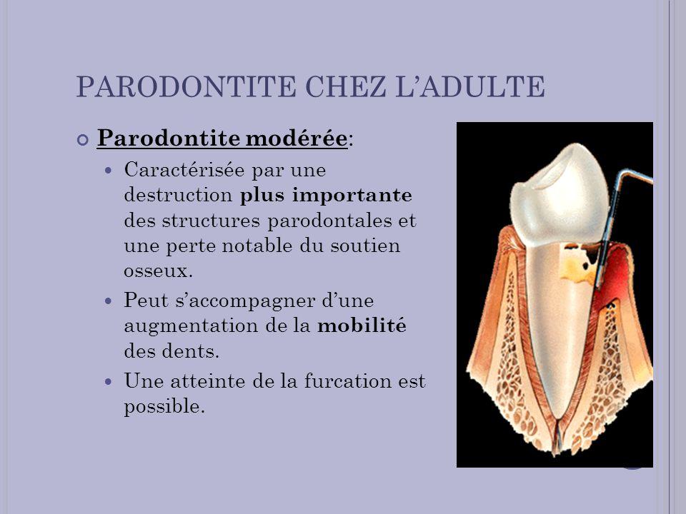 PARODONTITE CHEZ LADULTE Parodontite modérée : Caractérisée par une destruction plus importante des structures parodontales et une perte notable du so
