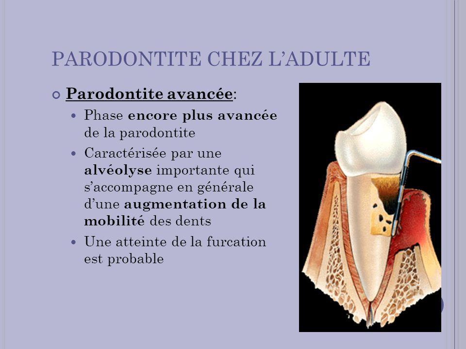 PARODONTITE CHEZ LADULTE Parodontite avancée : Phase encore plus avancée de la parodontite Caractérisée par une alvéolyse importante qui saccompagne e