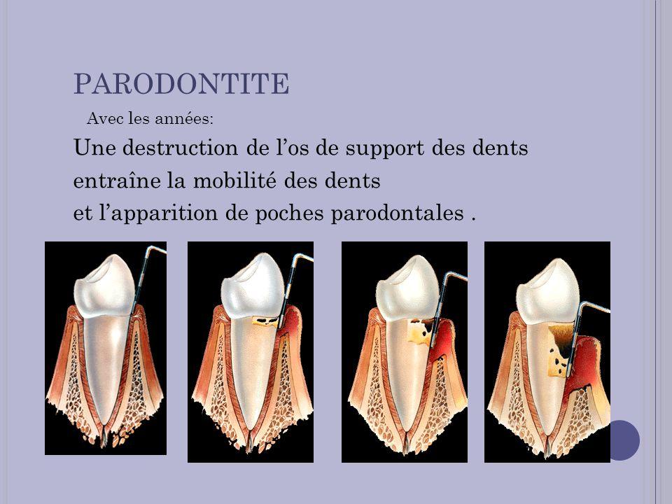 PARODONTITE Avec les années: Une destruction de los de support des dents entraîne la mobilité des dents et lapparition de poches parodontales.