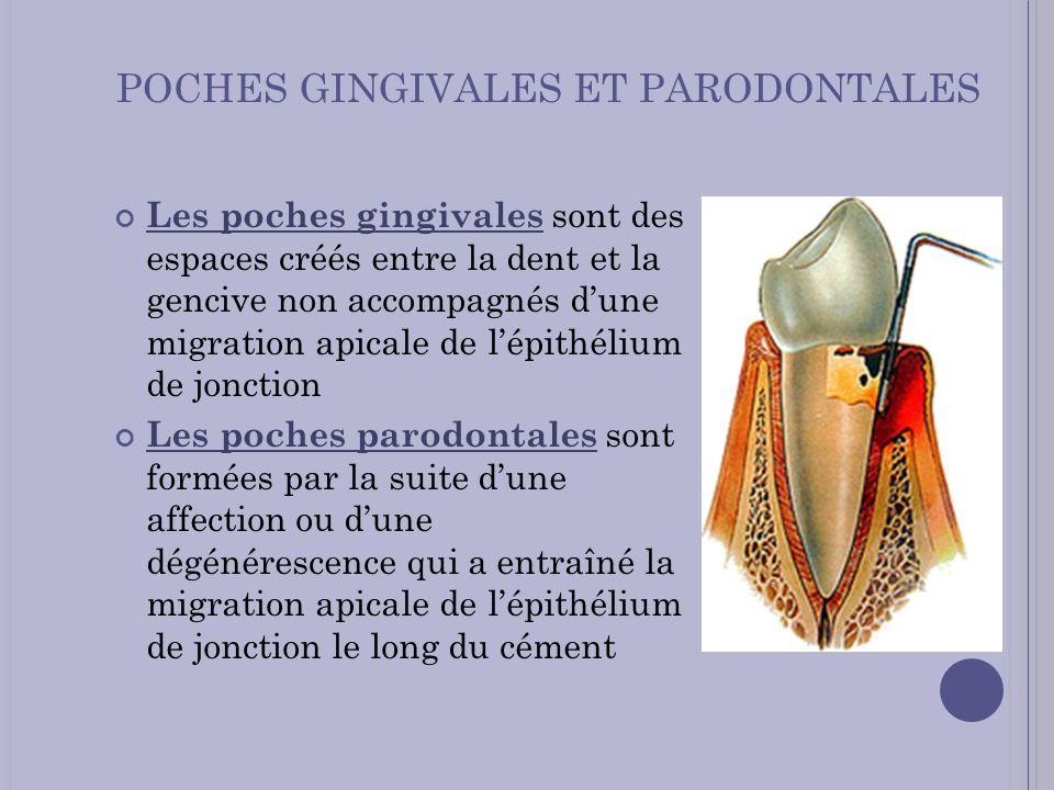 POCHES GINGIVALES ET PARODONTALES Les poches gingivales sont des espaces créés entre la dent et la gencive non accompagnés dune migration apicale de l