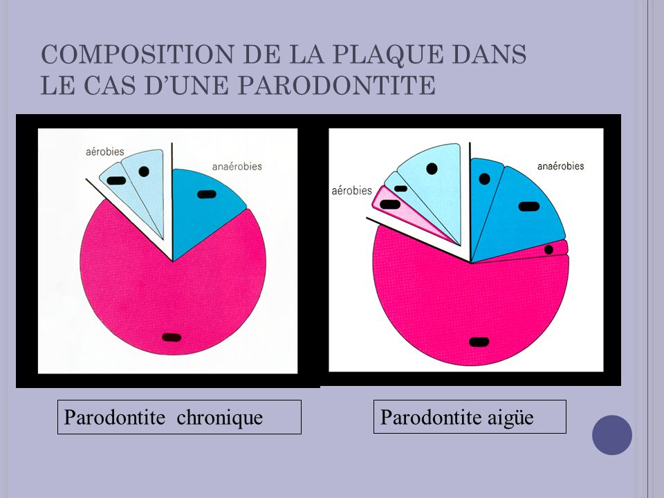 COMPOSITION DE LA PLAQUE DANS LE CAS DUNE PARODONTITE Parodontite chroniqueParodontite aigüe