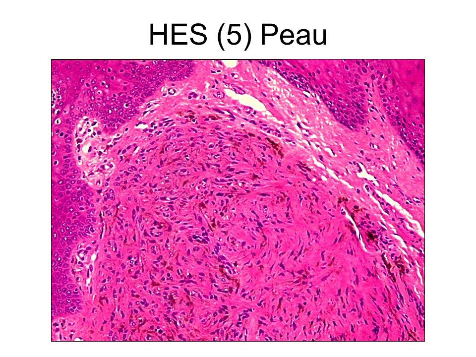 HES (5) Peau