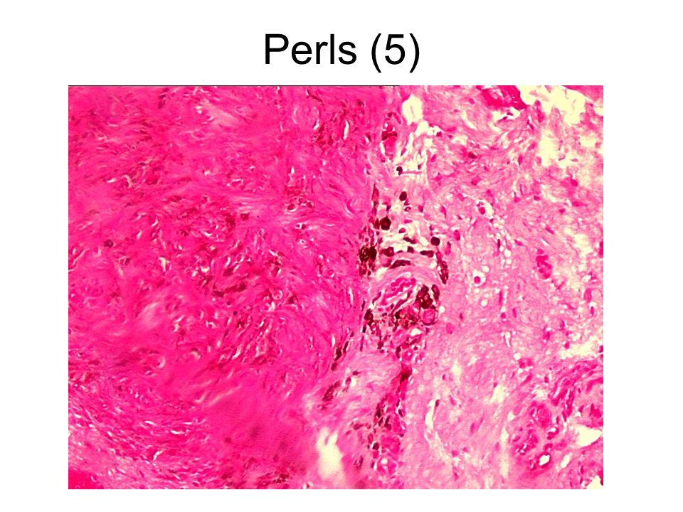 Perls (5)