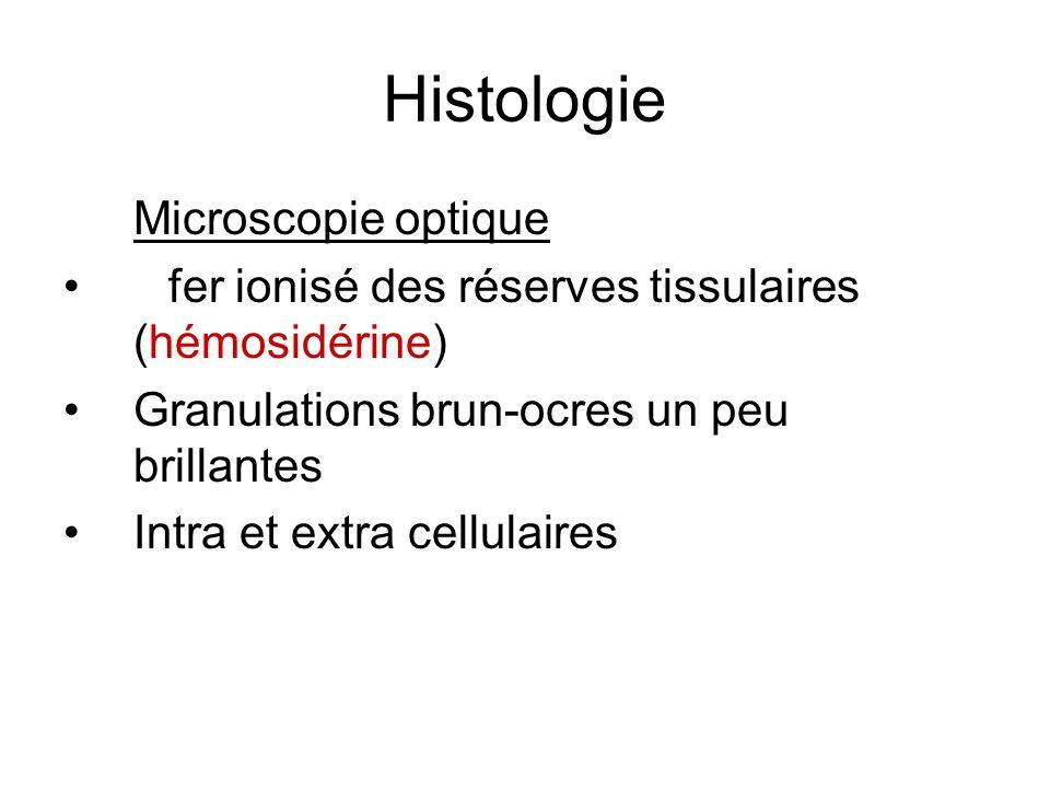 Histologie Microscopie optique fer ionisé des réserves tissulaires (hémosidérine) Granulations brun-ocres un peu brillantes Intra et extra cellulaires