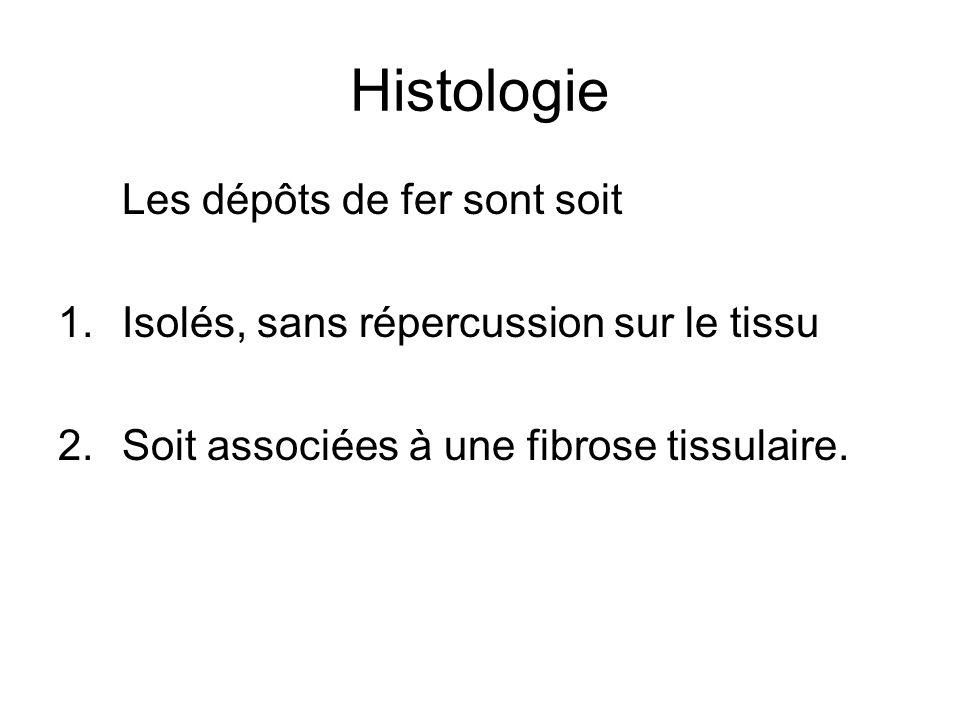 Histologie Les dépôts de fer sont soit 1.Isolés, sans répercussion sur le tissu 2.Soit associées à une fibrose tissulaire.