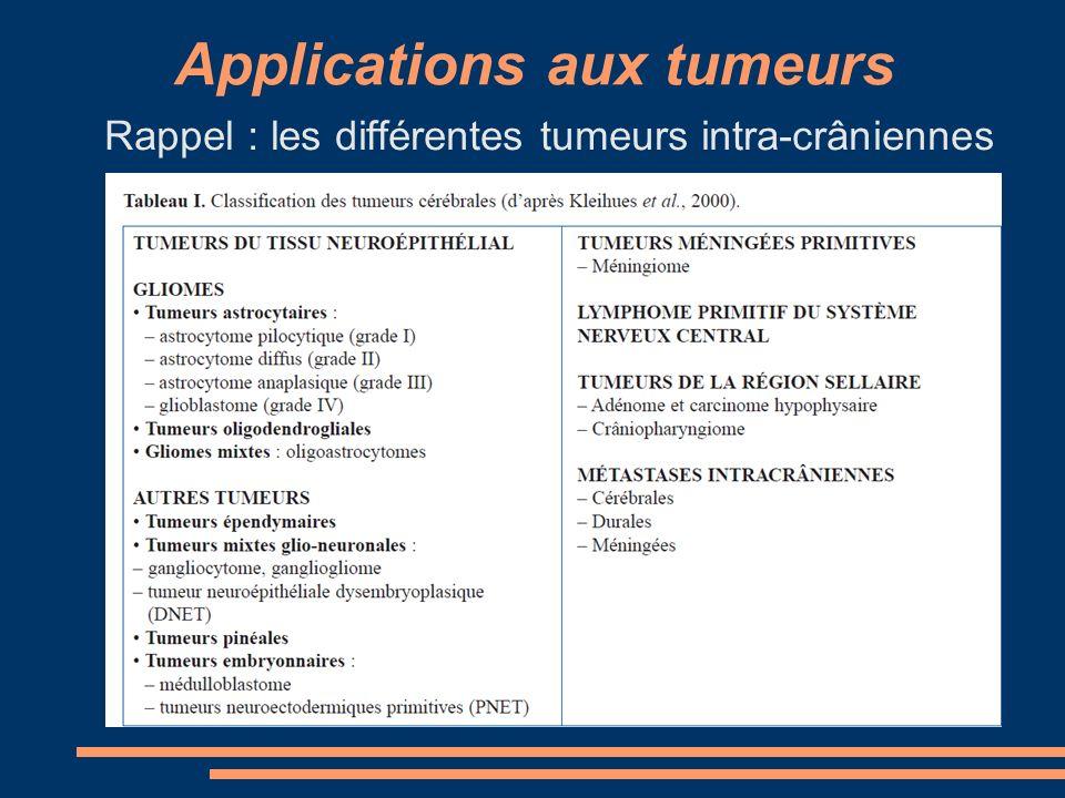 Applications aux tumeurs Rappel : les différentes tumeurs intra-crâniennes