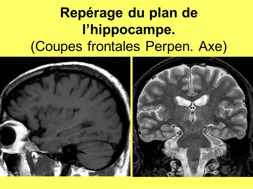 Repérage du plan de lhippocampe. (Coupes frontales Perpen. Axe)