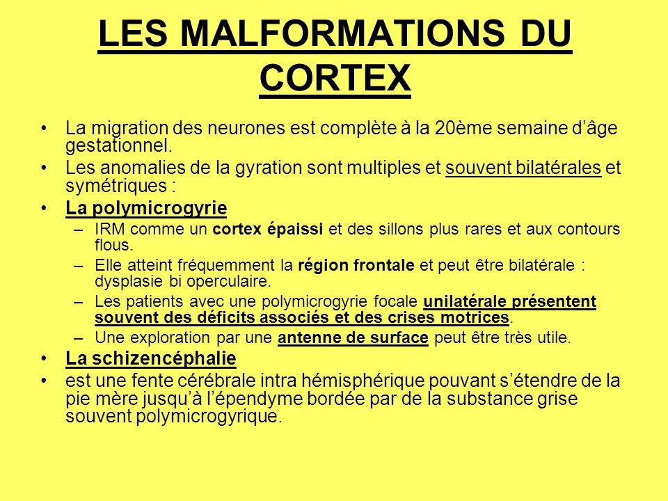 LES MALFORMATIONS DU CORTEX La migration des neurones est complète à la 20ème semaine dâge gestationnel.