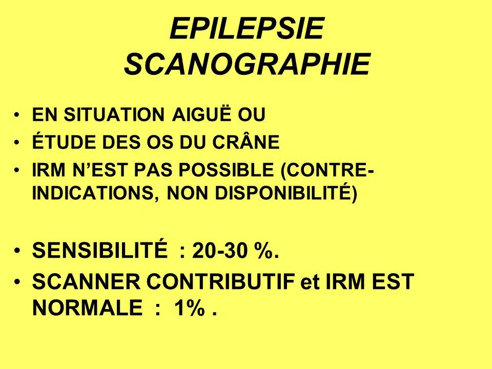 EPILEPSIE SCANOGRAPHIE EN SITUATION AIGUË OU ÉTUDE DES OS DU CRÂNE IRM NEST PAS POSSIBLE (CONTRE- INDICATIONS, NON DISPONIBILITÉ) SENSIBILITÉ : 20-30 %.