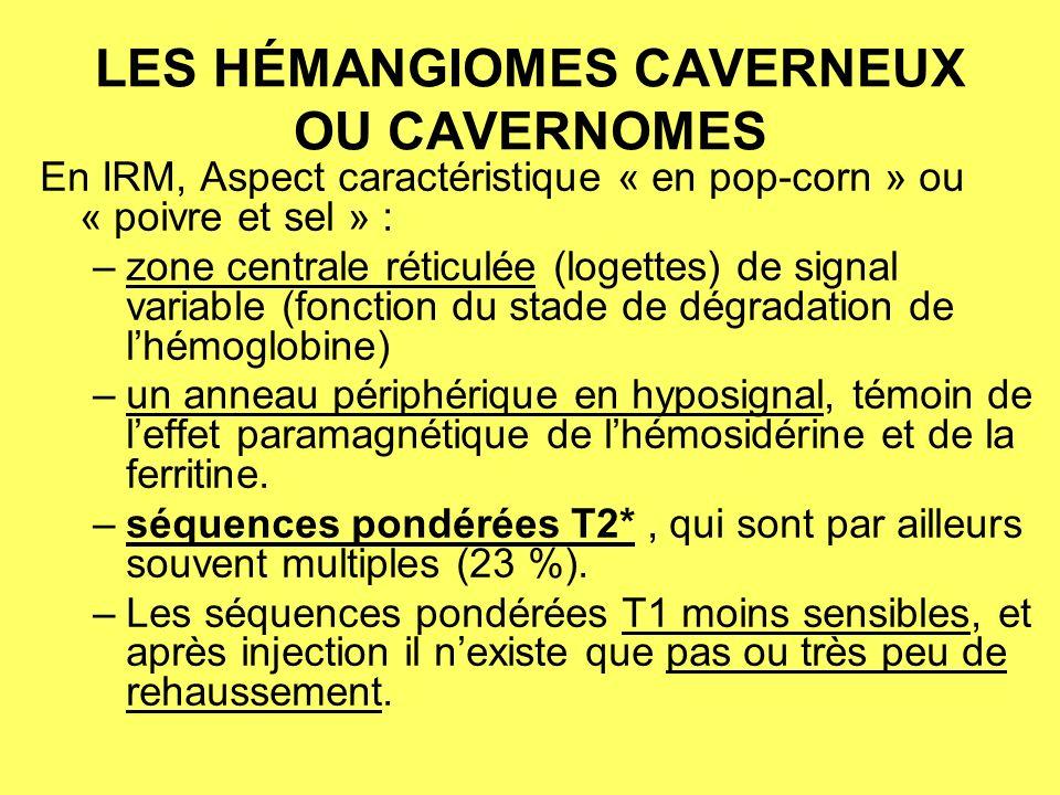 LES HÉMANGIOMES CAVERNEUX OU CAVERNOMES En IRM, Aspect caractéristique « en pop-corn » ou « poivre et sel » : –zone centrale réticulée (logettes) de signal variable (fonction du stade de dégradation de lhémoglobine) –un anneau périphérique en hyposignal, témoin de leffet paramagnétique de lhémosidérine et de la ferritine.