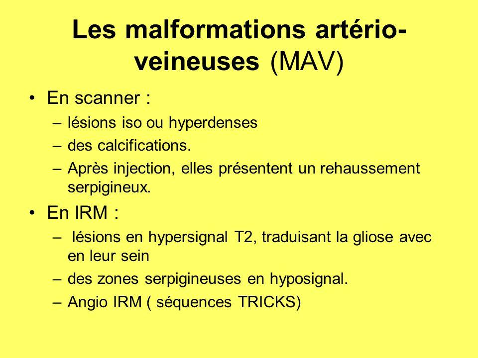Les malformations artério- veineuses (MAV) En scanner : –lésions iso ou hyperdenses –des calcifications.