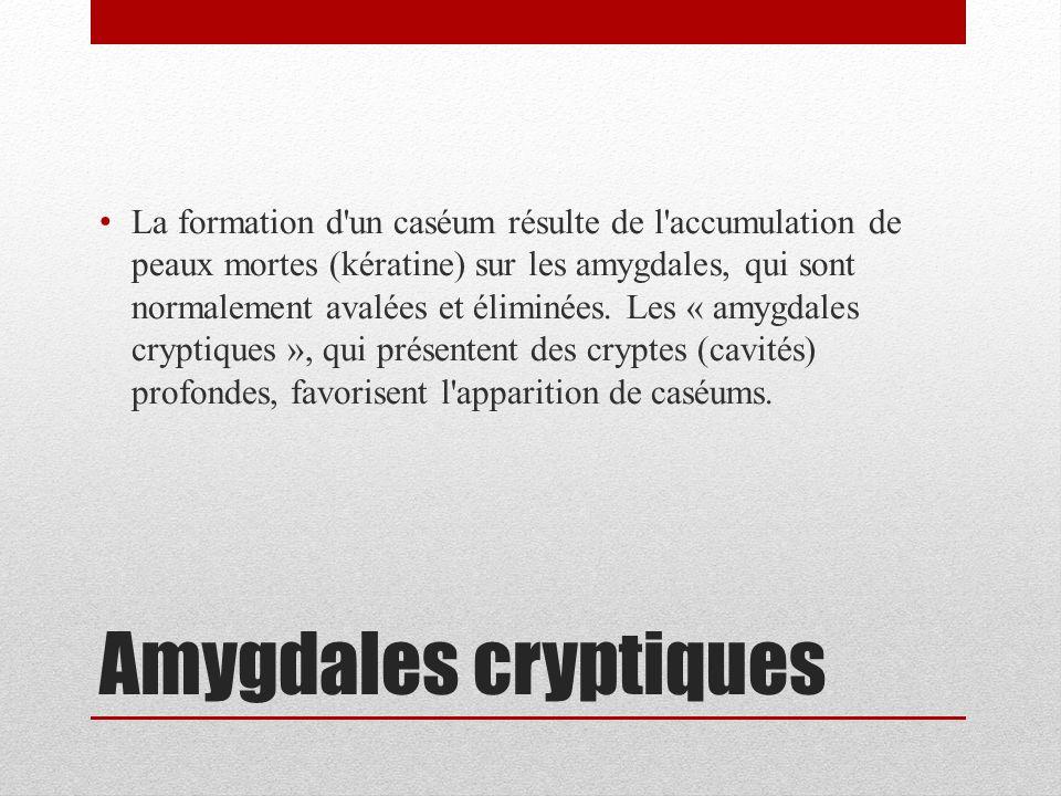 La formation d un caséum résulte de l accumulation de peaux mortes (kératine) sur les amygdales, qui sont normalement avalées et éliminées.