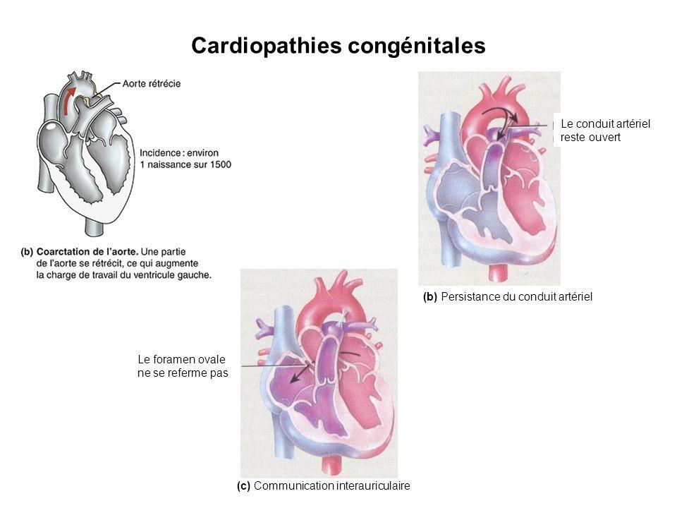 Cardiopathies congénitales Le conduit artériel reste ouvert (b) Persistance du conduit artériel (c) Communication interauriculaire Le foramen ovale ne