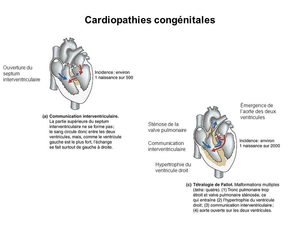 Ouverture du septum interventriculaire Cardiopathies congénitales Émergence de laorte des deux ventricules Sténose de la valve pulmonaire Communicatio