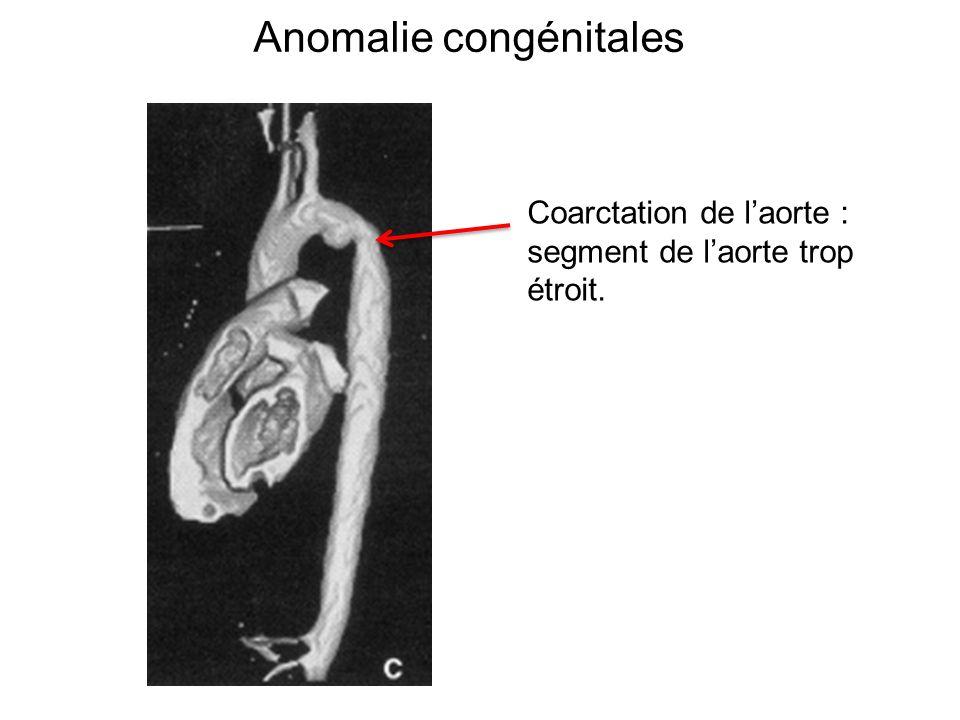 Anomalie congénitales Coarctation de laorte : segment de laorte trop étroit.