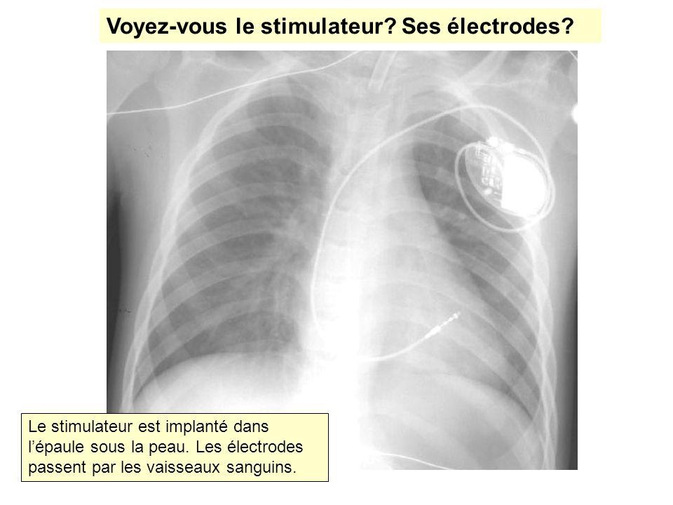 Voyez-vous le stimulateur? Ses électrodes? Le stimulateur est implanté dans lépaule sous la peau. Les électrodes passent par les vaisseaux sanguins.