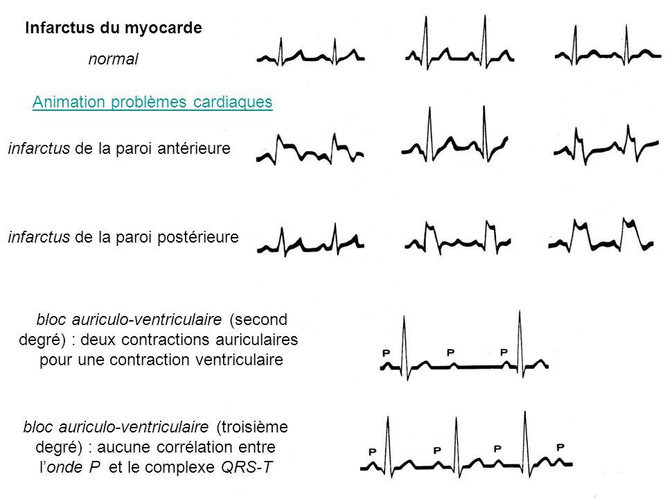 normal infarctus de la paroi postérieure infarctus de la paroi antérieure bloc auriculo-ventriculaire (troisième degré) : aucune corrélation entre lon