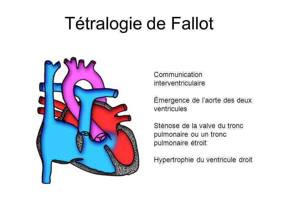 Tétralogie de Fallot Communication interventriculaire Émergence de laorte des deux ventricules Sténose de la valve du tronc pulmonaire ou un tronc pul