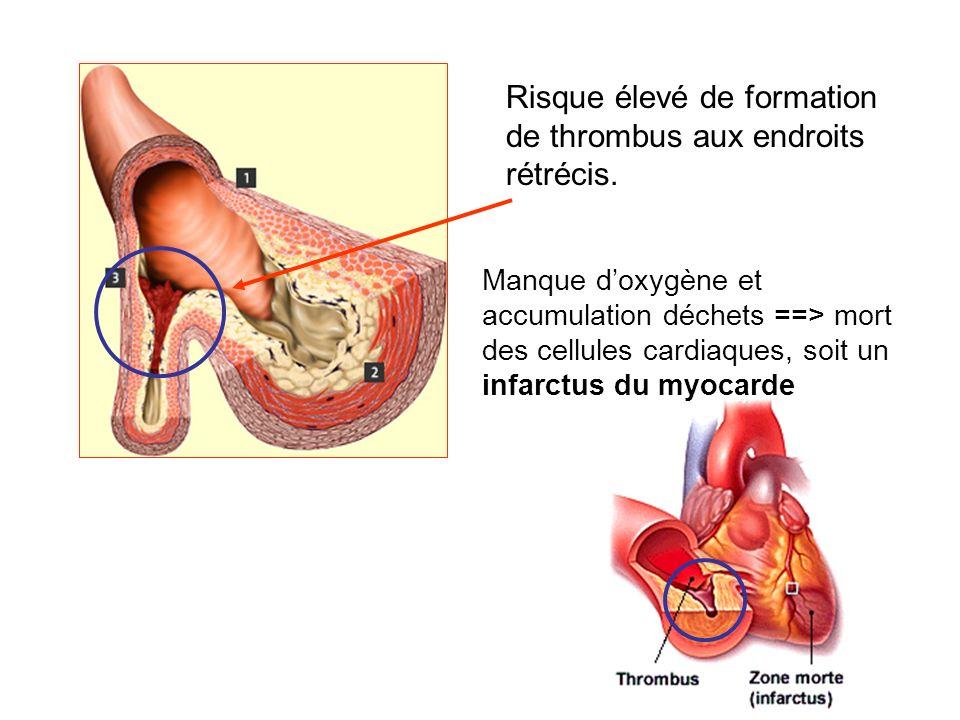 Risque élevé de formation de thrombus aux endroits rétrécis. Manque doxygène et accumulation déchets ==> mort des cellules cardiaques, soit un infarct