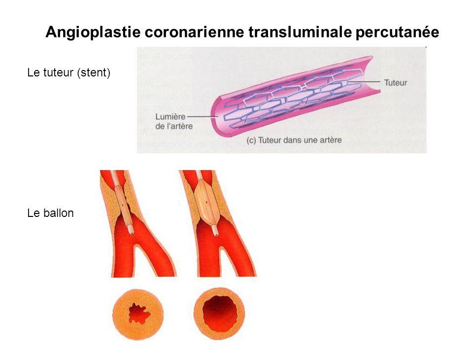 Linstallation dun stent, sorte de petit ressort que le chirurgien installe dans une artère bouchée à laide dun ballonnet gonflable Une fois installée, la plaque graisseuse est plaquée sur les côtés.