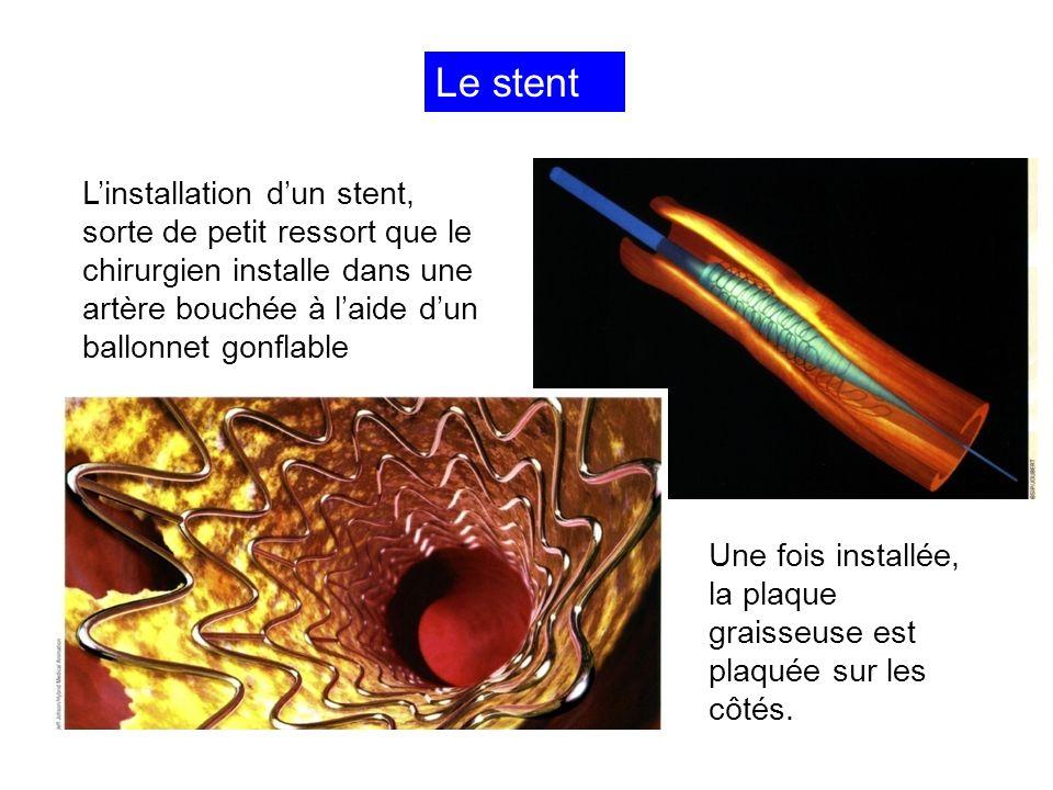 Angioplastie : le pontage 1.Bypass (=contournement) avec une artère saine parallèle, comme lartère mammaire 2.Greffon à partir dun segment de veine prélevé ailleurs, comme la veine saphène dans la jambe