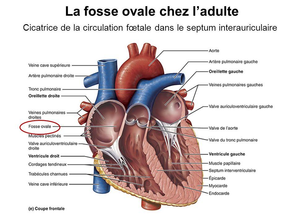 Cardiopathies congénitales Le conduit artériel reste ouvert (b) Persistance du conduit artériel (c) Communication interauriculaire Le foramen ovale ne se referme pas