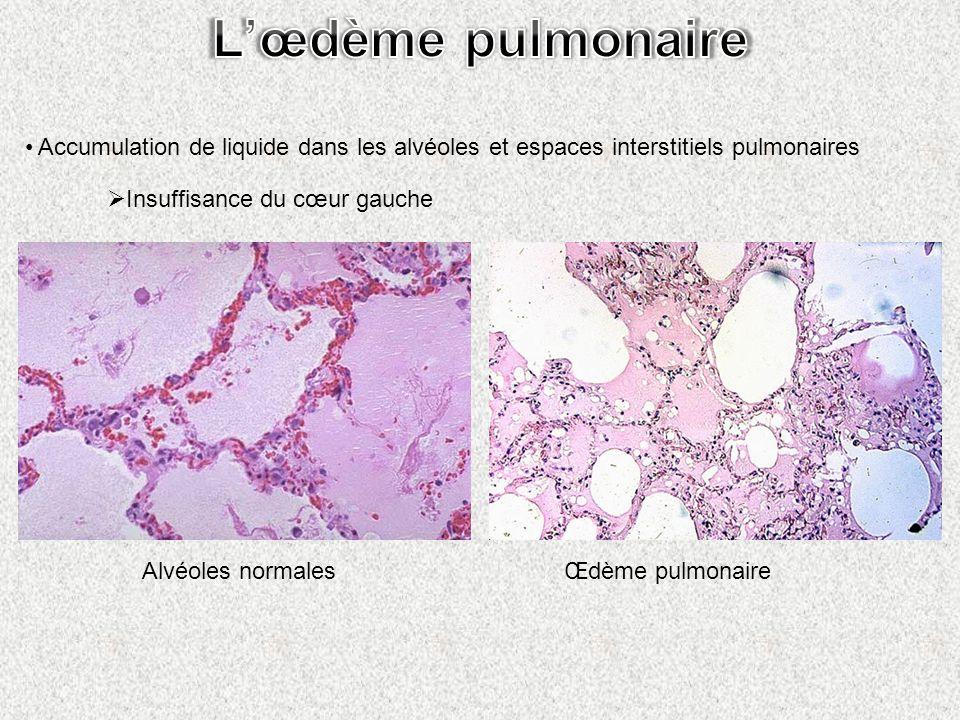 Accumulation de liquide dans les alvéoles et espaces interstitiels pulmonaires Insuffisance du cœur gauche Alvéoles normalesŒdème pulmonaire