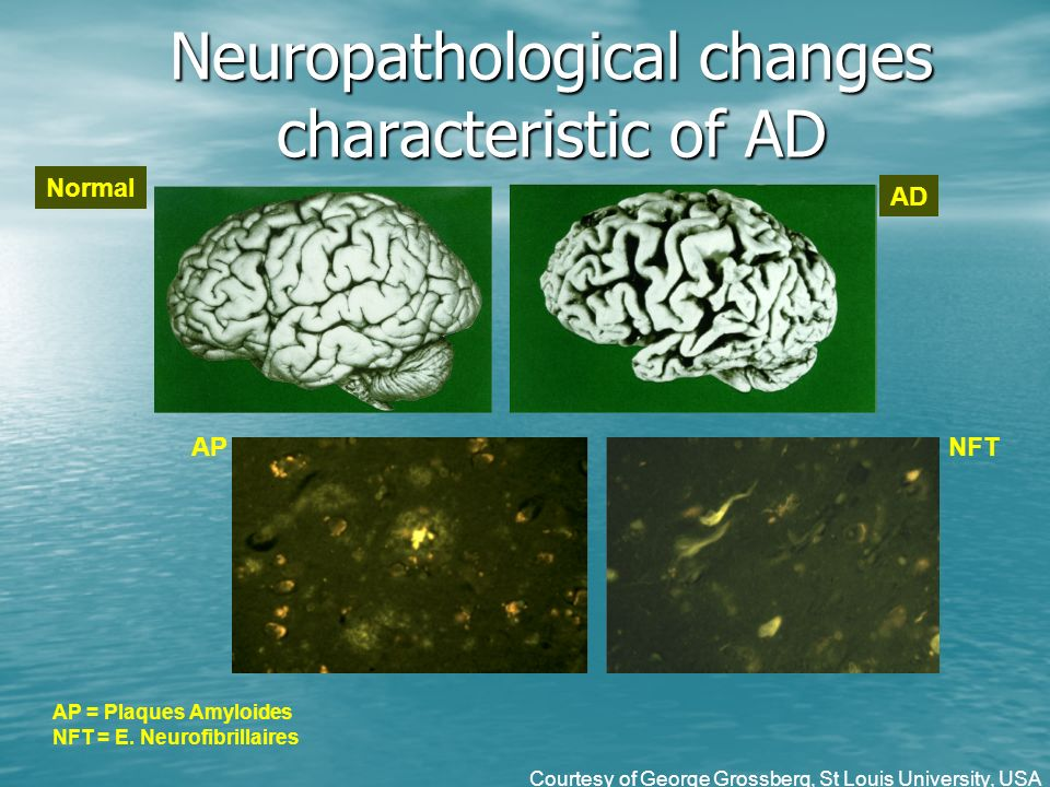 Neuropathological changes characteristic of AD Normal AD APNFT AP = Plaques Amyloides NFT = E.