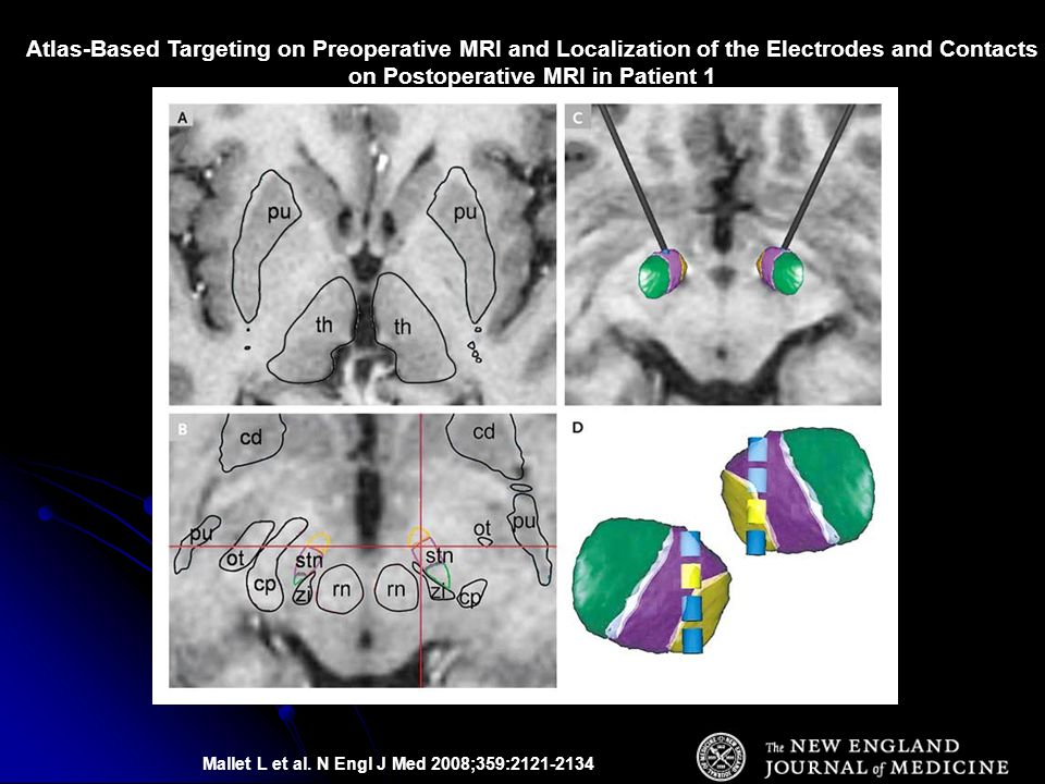 Mallet L et al. N Engl J Med 2008;359:2121-2134 Atlas-Based Targeting on Preoperative MRI and Localization of the Electrodes and Contacts on Postopera